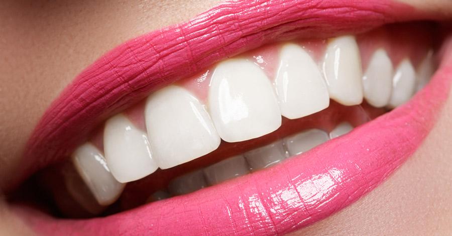 Tout sur la facette dentaire